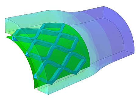 Anisotropic hyperelastic material model in Abaqus 6.8 enables the complex modeling and analysis of biological tissues. This capability enables medical device manufacturers to improve the performance and reliability of medical devices such as stents.