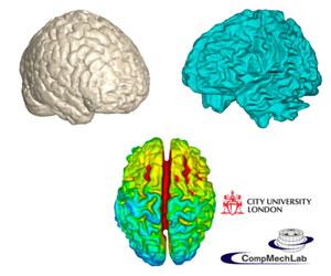 2009_ANSYS Contest_CompMechLab_Конечно-элементное моделирование электромагнитных полей человеческого мозга с целью решения прямой задачи магнитно-резонансной томографии на основе результатов магнитоэнцефалографии. Увеличить
