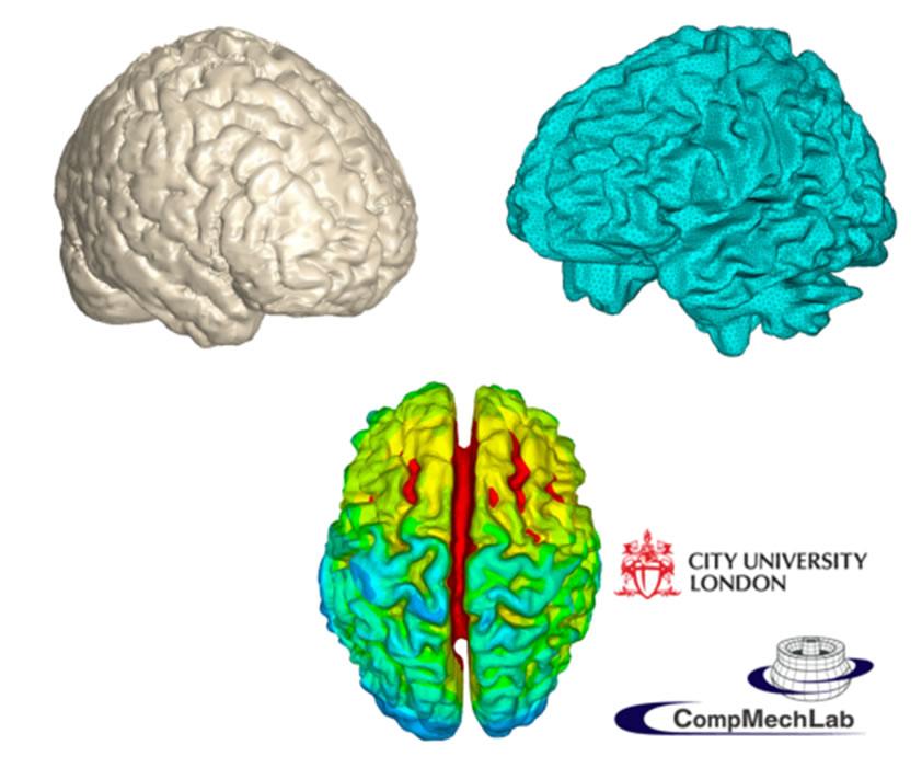 Конечно-элементное моделирование электромагнитных полей человеческого мозга с целью решения прямой задачи магнитно-резонансной томографии на основе результатов магнитоэнцефалографии