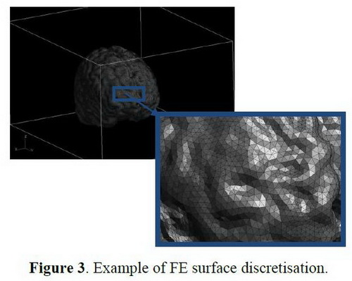 CompMechLab_FEA of the forward problem in magnetic field tomography based on magnetoencephalography_2